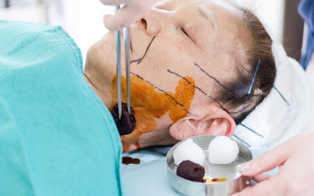 切るリフト手術画像 消毒