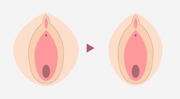 大陰唇縮小術